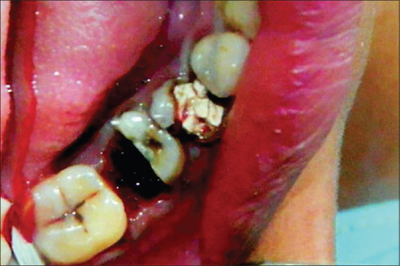 Figure 4: Clinical photograph showing remaining mesial half of mandibular molar after Hemisection