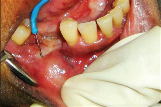 Figure 3: Preoperative incision given with electrocautery