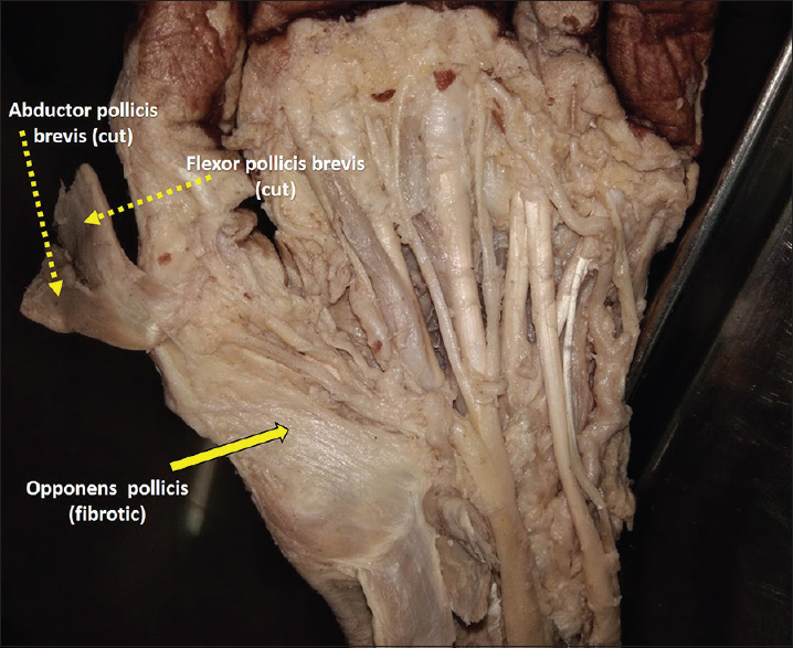 Figure 1: Dissection of the left hand showing fibrotic opponens pollicis after reflecting abductor and flexor pollicis brevis